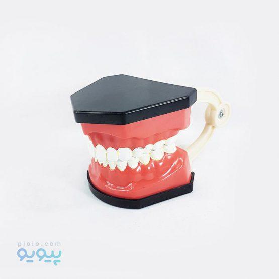 خرید مولاژ دهان و دندان